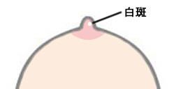 水ぶくれ 授乳 乳首