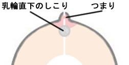 にゅ う りん の まわり の ぶつぶつ