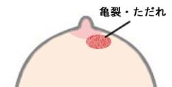 輪 痒い 乳